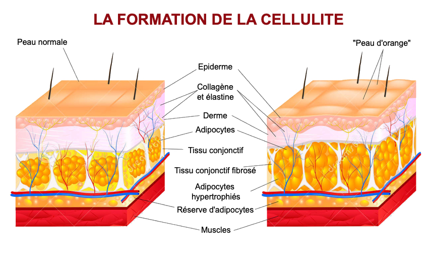 Schéma explicatif sur la cellulite