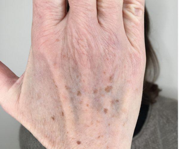 Lentigo actinique ou tache de vieillesse